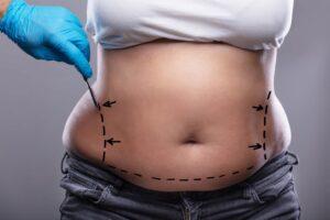 liposucción operación