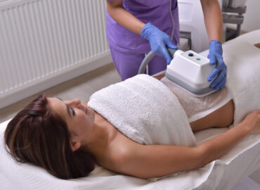 tratamiento criolipólisis en abdomen