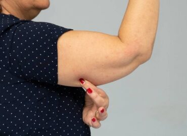 brazo mujer descolgado