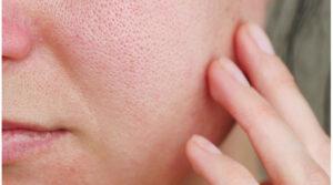 piel enrojecida poro dilatado